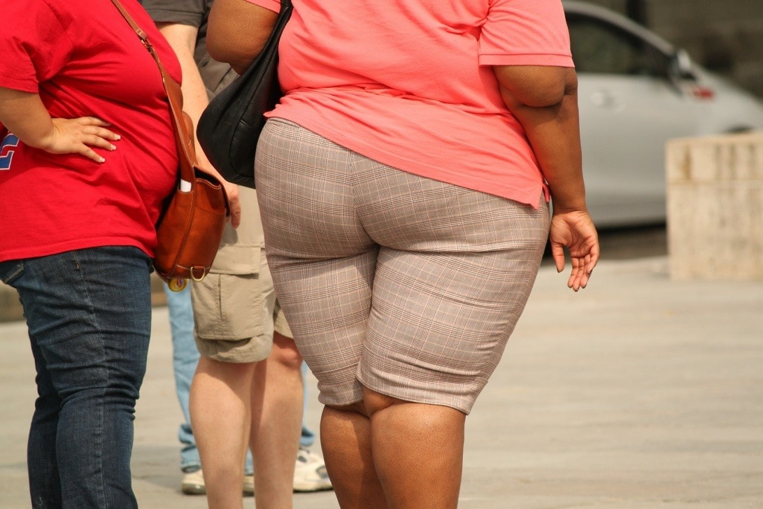 dimagrimento localizzato: grasso sulle cosce